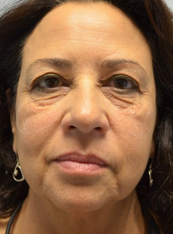 56 year old Female treated for under eye bags and prejowls around the the chin  before 960946