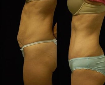 Abdominoplasty 503890