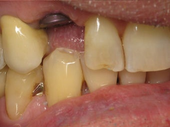 Implant Crown with Zirconia Abutment Before & After Photo before 996259