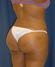 Brazilian Butt Lift Fat Injection Buttock Augmentation after 101291