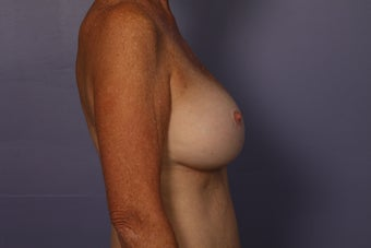 63 yr old Breast Revision after 957283