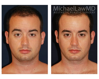 Chin Liposuction - Lower Facial Rejuvenation before 827465
