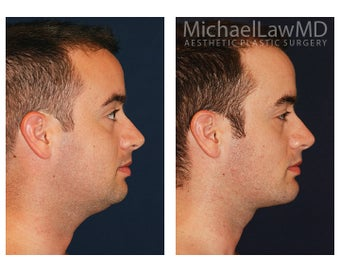 Chin Liposuction - Lower Facial Rejuvenation 827465