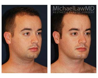 Chin Liposuction - Lower Facial Rejuvenation after 827465