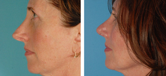 Functional Rhinoplasty before 1208304