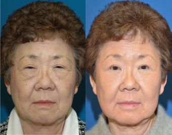 Full face laser resurfacing before 932429