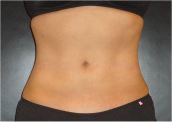 SmartLipo MPX with PRO-Sculpt after 686032