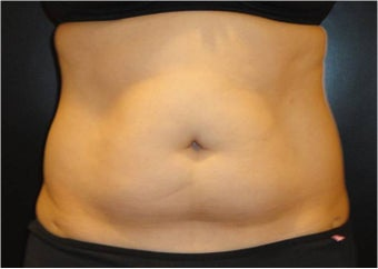 SmartLipo MPX with PRO-Sculpt before 686032