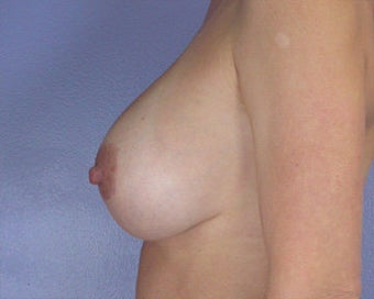 Breast Implant Correction after 281299