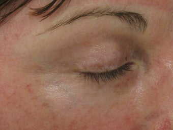 Fraxel re:pair (repair) CO2 laser resurfacing blepharoplasty after 43767