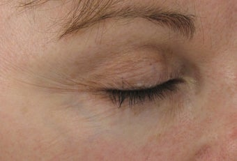 Fraxel re:pair (repair) CO2 laser resurfacing blepharoplasty before 43767