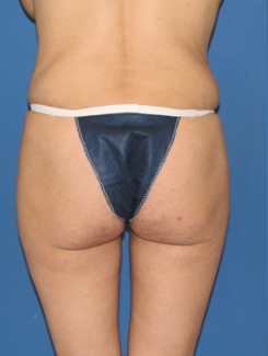 Butt Augmentation before 398807