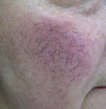 64 year old male with facial veins / telangiectasia before 694743