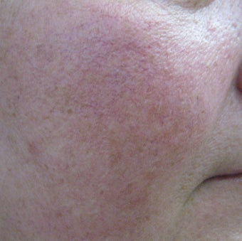 64 year old male with facial veins / telangiectasia after 694743