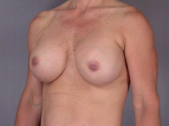 41 yr old breast implant revision after 1060868