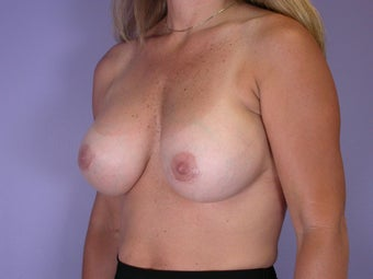 41 yr old breast implant revision before 1060868