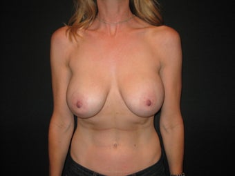 Breast Implant Removal with Mastopexies before 817158