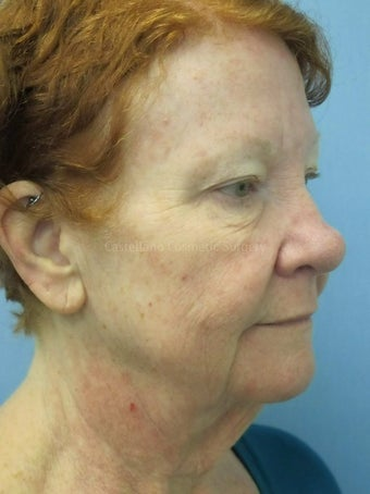 Face skin rejuvenation, woman, spot removal before 851412