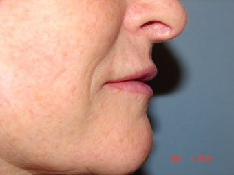 59 year old female with thin lips 733382