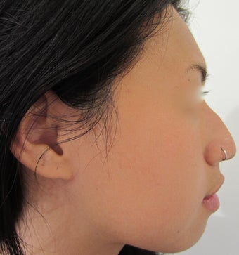 24 year-old female with nose hump treated with Restylane filler before 989340