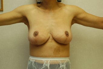 arm Lift (brachioplasty) after 333745