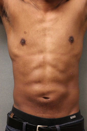 42 Year Male Treated to Increase Ab Definition  after 824829