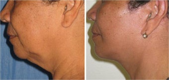 Neck Lift and Liposuction before 512859