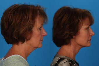Facial Rejuvenation: 59-Year-Old Woman 1044697