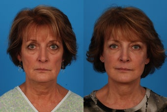 Facial Rejuvenation: 59-Year-Old Woman before 1044697