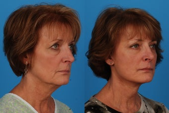 Facial Rejuvenation: 59-Year-Old Woman after 1044697