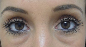 Restylane Under Eyes before 1285435