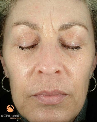 Female Treated with BOTOX® Cosmetic and Restylane® before 1047006