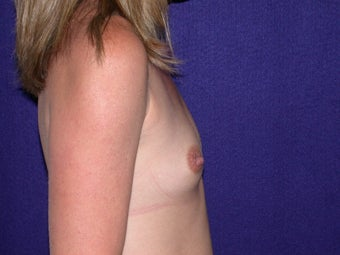 Breast Augmentation before 204622