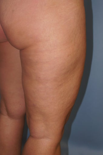 43 year old treated with Cellulaze of thighs 953980