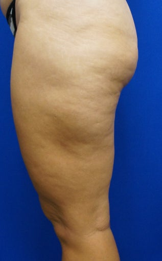 43 year old treated with Cellulaze of thighs before 953980