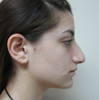 19 Year Old Treated for Aesthetic Nasal Deformity before 709830