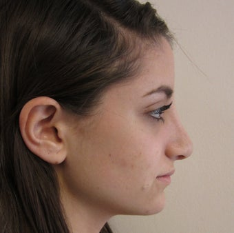 19 Year Old Treated for Aesthetic Nasal Deformity after 709830