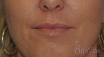 49 y/o female desired fuller lips with filler.  before 1137137