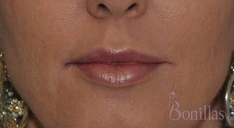 49 y/o female desired fuller lips with filler.  after 1137137