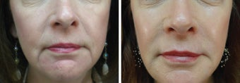 61 Year Old Female with facial fillers, skin care, and Botox before 916684