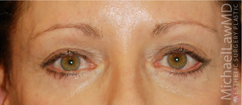 Eye Bag Surgery after 892146