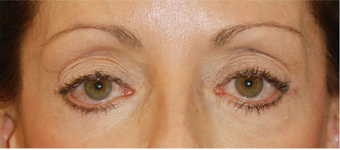 Eye Bag Surgery before 892146