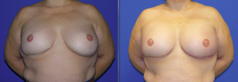 49 year old female with revision of breast reconstruction: saline to gummy bear implants before 1309711