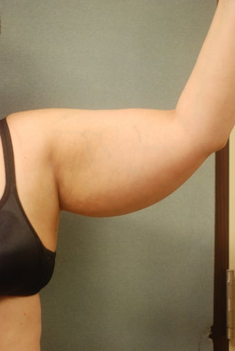 SmartLipo Arms before 356400