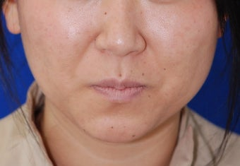 Botox Facial Contouring/Jawline Reduction before 307249