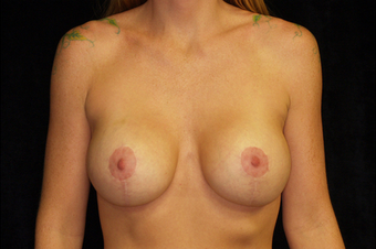 Breast augmentation after 391337