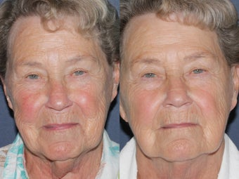 Before & After IPL Photo Facial before 806254