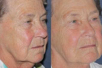 Before & After IPL Photo Facial 806254