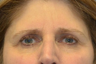 Endoscopic Browlift, SMAS Facelift and Necklift, Chin Implant 837360