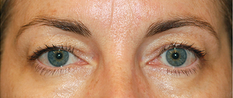 Eye Bag Surgery before 886816